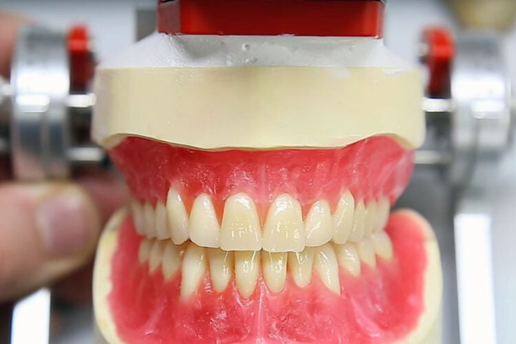 Protesi dentiera4